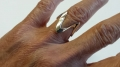 Anello M (M Ring)
